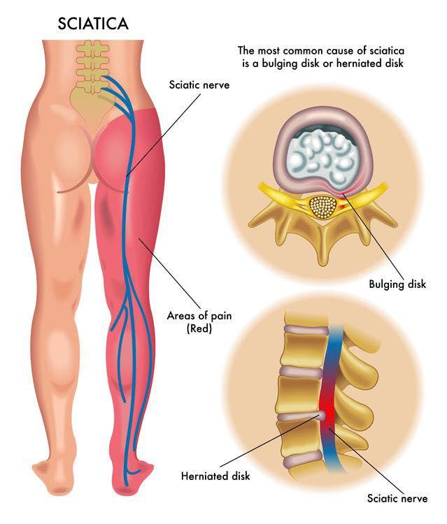 Хүний биеийн томоохон мэдрэлийн нэг нь суудлын мэдрэл   Эрүүл мэнд